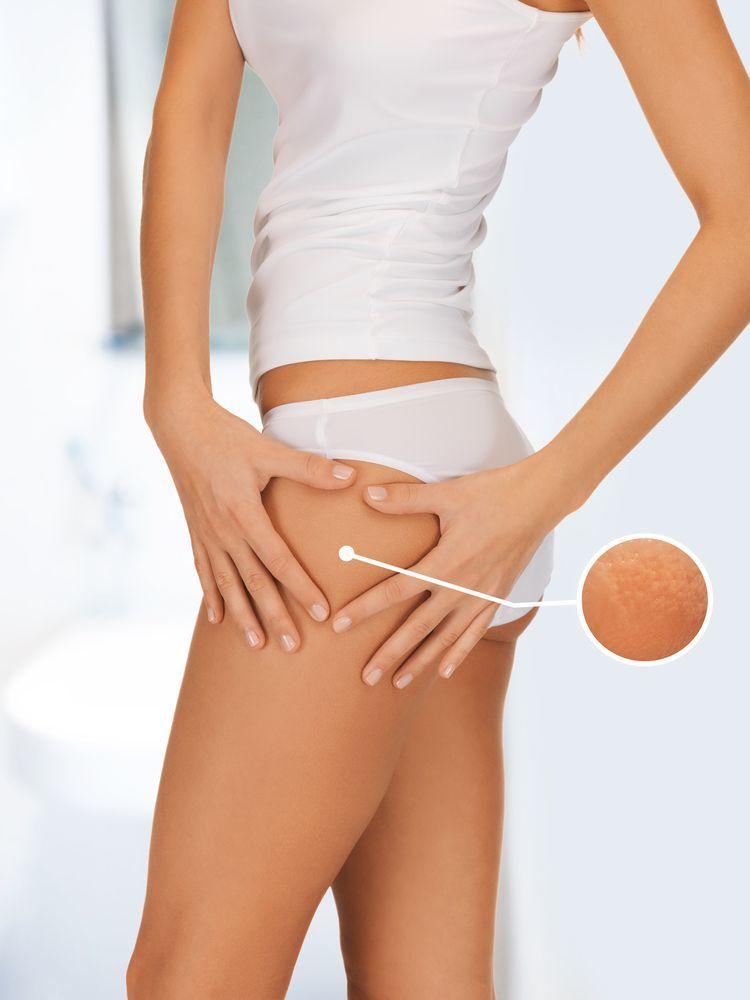corpo femminile con focus su segni di cellulite