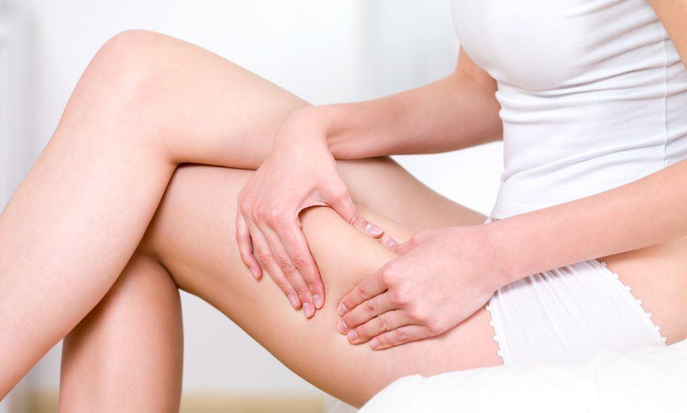 donna seduta che evidenzia cellulite sulle gambe