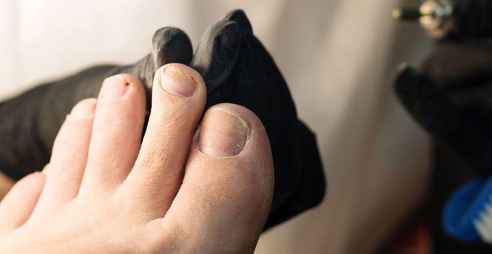 piede di donna durante trattamento micosi alle unghie dei piedi